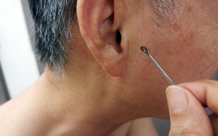 Ohrenreiniger - Die einfache Art der Ohrenreinigung